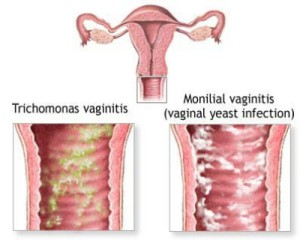 Bacterial-Vaginitis