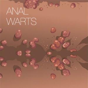 analwarts-img